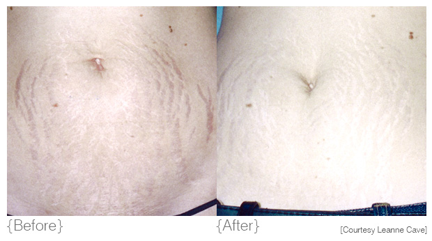 {stretch marks} - Diagnosis: Stretch marks or 'striae' are a form of a scar resulting in white or silvery scar tissue typically in the breast, abdomen and thigh area. Stretch marks most commonly result when the skin stretches rapidly due to rapid growth or weight gain, pregnancy, muscle building or puberty.Solution: To revise stretch marks, DMK aim to rebuild a smoother, firmer tissue to replace the old damaged tissue.Products: hydra louffa, beta gel, direct delivery vitamin c serum, herbal pigment oil, herb & mineral mist, contraderm, maximum moisture, actrol powder, retosin, DMK efa+Treatments: Body Enzyme Therapy, pH Variations, melanoplex drops, SRP (Stretch Mark Remodelling Procedures)