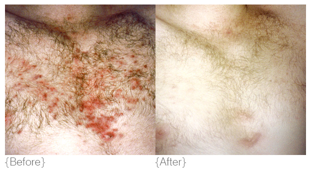 {ingrown hair & folliculitis} - Diagnosis: Folliculitis is an inflammation in the hair follicle, characterised by follicular papules, red raised bumps and pustules. Folliculitis and ingrown hairs are the result of a dysfunctional process inside the hair follicle. Blockages stop the natural flow in the follicle, trapping bacteria and potentially causing infection and inflammation.Solution: DMK dissolves the hair and accumulation of dead cell material, which releases the follicle, addresses infection, strengthens the skin and in turn, reduces any remaining redness and inflammation.Products: hydra louffa, melanoplex drops, beta gel, maximum moisture, transdermal sunblock, actrol powder, retosin, calerase, DMK efa+Treatments: Follicuzyme