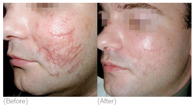 {scarring} - Diagnosis: Many clients come to us after using ineffective scar treatment products which work topically rather than remodelling the skin back to form a firm, flat surface. Following the occurrence of acne, lacerations or injuries, the skin forms new cells. When these new cells develop either too quickly (hypotropic scar) or too slowly (cuneiform scar), a scar forms.Solution: Scar revision cannot be achieved by merely rubbing a crème onto the surface of the skin. DMK implement different skin revision systems which force the skin to go into a repair phase, changing the architecture of the scarred area. DMK aim to encourage old, damaged scar tissue to replace itself with stronger, firmer, healthier tissue. We advocate a series of DMK Treatments for optimal results. DMK is a world leader in scar revision.Products: direct delivery vitamin c serum, beta gel, herbal pigment oil, herb & mineral mist, contraderm, eyetone, fineline crème, hydrophilic crème, transdermal sunblock, retosin, DMK efa+Treatments: Enzyme Therapy, melanoplex drops, Pro Alpha Six-layer Peel, RP (remodelling procedures), Pro Peel, pH Variations, Muscle Banding