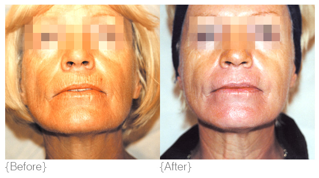 {premature ageing & sun-damage} - Diagnosis: Premature ageing, as characterised by symptoms such as pigmentation, sun spots, fine lines, wrinkles and sagging skin, is effectively a loss of structural integrity within the skin. As we age, the skin's matrix becomes thin and the skin loses its bounce. Ultraviolet exposure speeds up this process by disrupting the normal architecture of connective tissue within the dermis. UV decreases collagen and elastin and alters the cross linked structure of collagen and elastin fibres within the dermal extracellular matrix. Abnormal material containing elastin and fibrillin accumulates and appears to occupy areas of lost collagen: this is called solar elastosis.Solution: As premature ageing and sun-damage is a result of structural destruction and deterioration in the normal functioning of skin, DMK approach this condition by revising old and damaged tissue, rebuilding the skin and facilitating optimal function. We revise the decline in processes that occur when the skin starts to age and by strengthening the skin's underlying matrix, we encourage the skin to function like a young and healthy skin.Products: milk cleanser, direct delivery vitamin c serum, beta gel, seba-e or herbal pigment oil, herb & mineral mist, betagen crème, nite firming crème, aminodine spritz, fine line crème, eye tone, retosin, super bright, foamy lift and exoderma peel, micro peel, hydrating masque, DMK efa+Treatments: Enzyme Therapy, melanoplex drops, Pro Peel, Liquid Laser, Pro Alpha Six-layer Peel, RP (remodelling procedures), Muscle Banding, A-Lift (Aesthetic Lift)