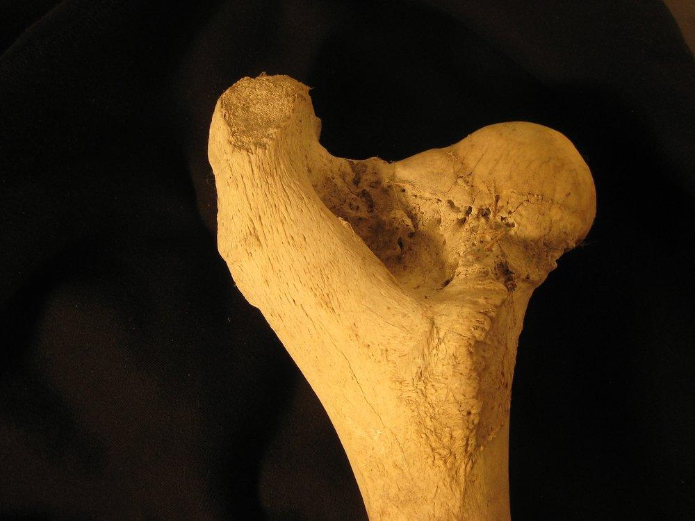 bone femur.jpg
