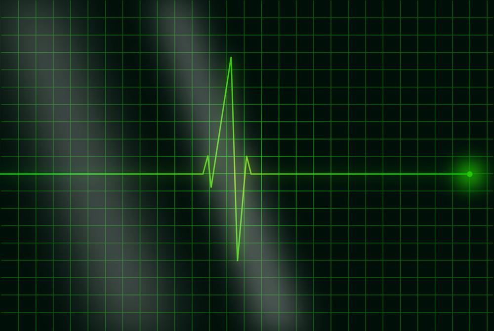 electrocardiogram ekg qrs.png