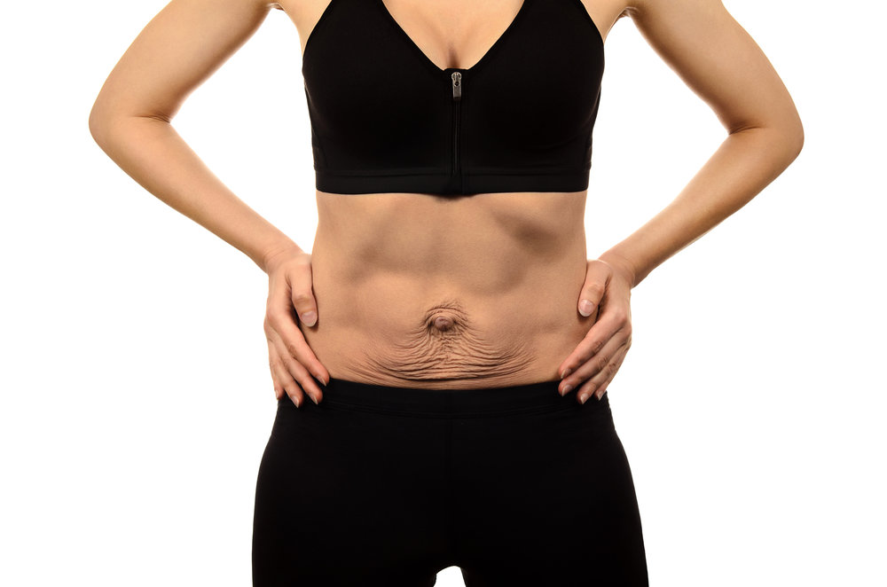 DIASTASIS RECTI - Is the separation in the rectus abdominis or