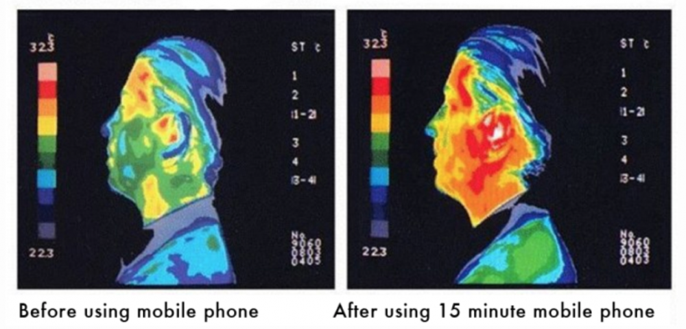 Heat Generated on the face by for 15 minutes of cell phone use due to Electromagnetic Radiation.