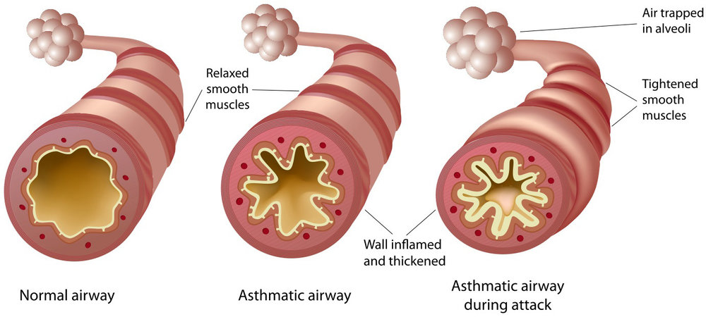 The difference between an asthmatic airway and a non-asthmatic airway.