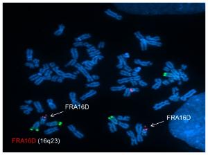 Fragile site breaks in FA patient cells