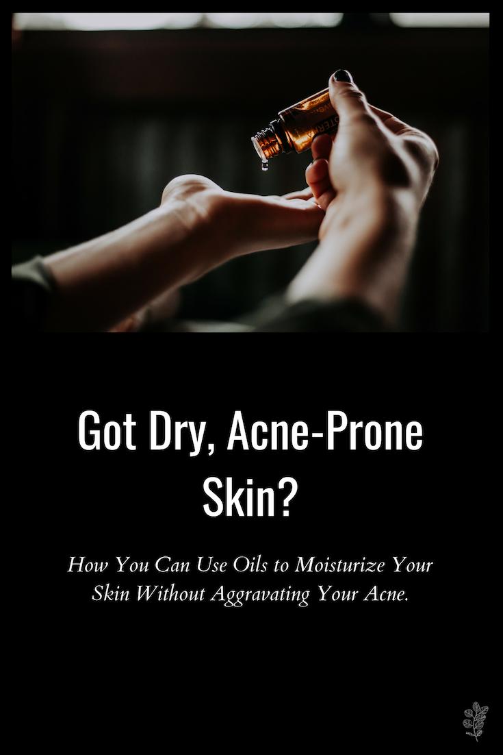 Got Dry, Acne-Prone Skin? | Trelawny Holistik