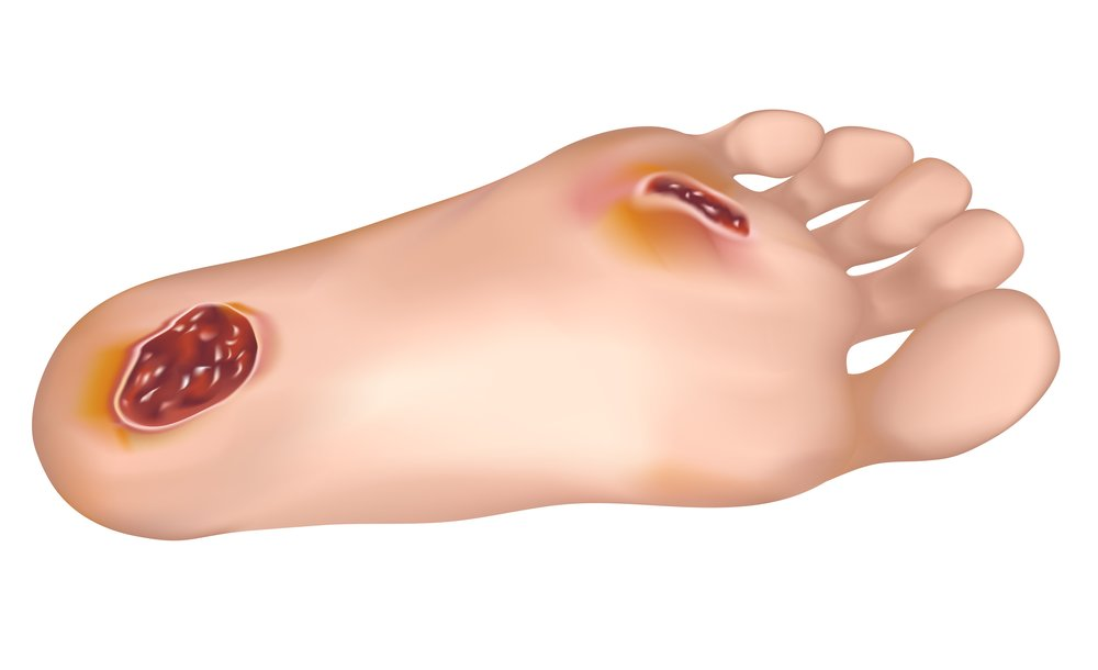 dr. echard treats diabetic feet and diabetic wounds