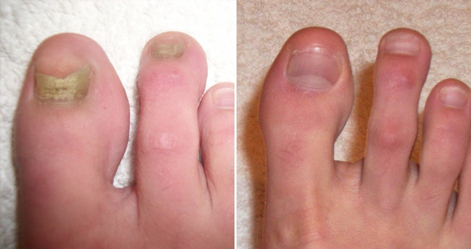 laser fungal toenail treatment