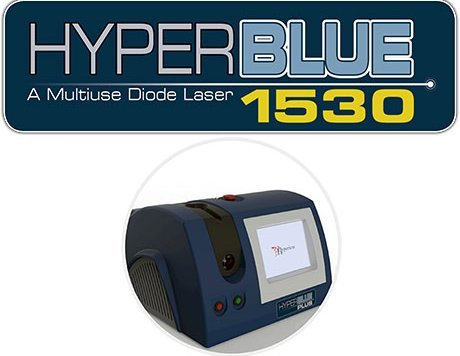 laser treatment with hyperblue laser for nail fungus