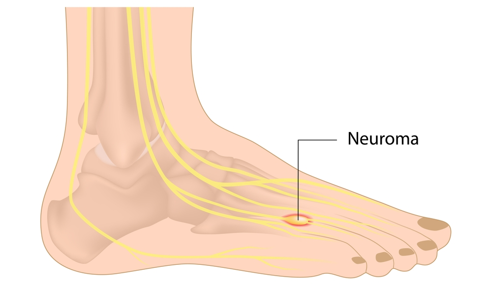 neuroma treatment by foot doctor