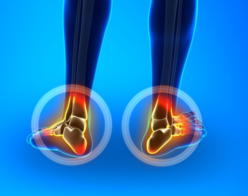 treatment for heel pain, plantar fasciitis and achilles tendonitis with shockwave therapy