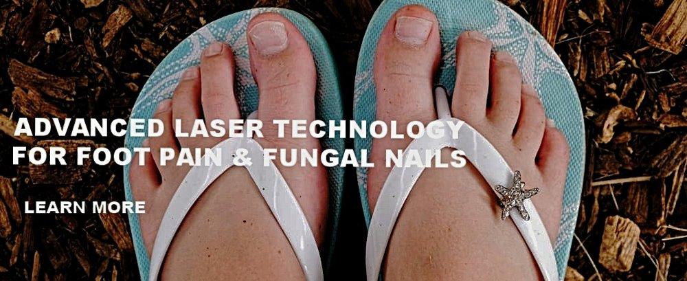Laser Fungal Toenails