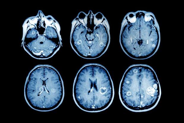 MRI scan showing signs of multiple brain tumours.
