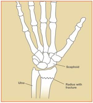 Figure 1: example of wrist radius fracture