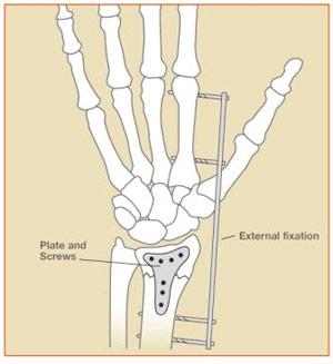 Figure 5: Distal Radius Fractures – External and Internal Fixation