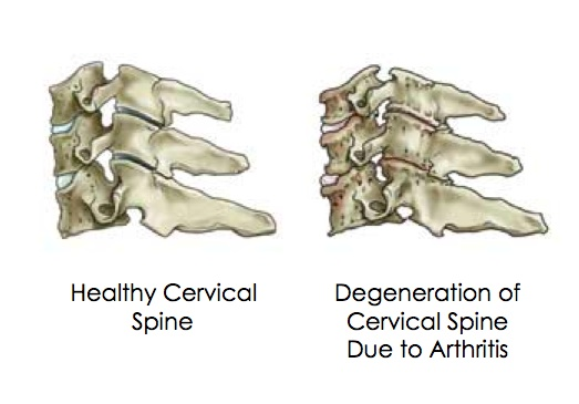 Cervical-Spondylosis-1.jpg