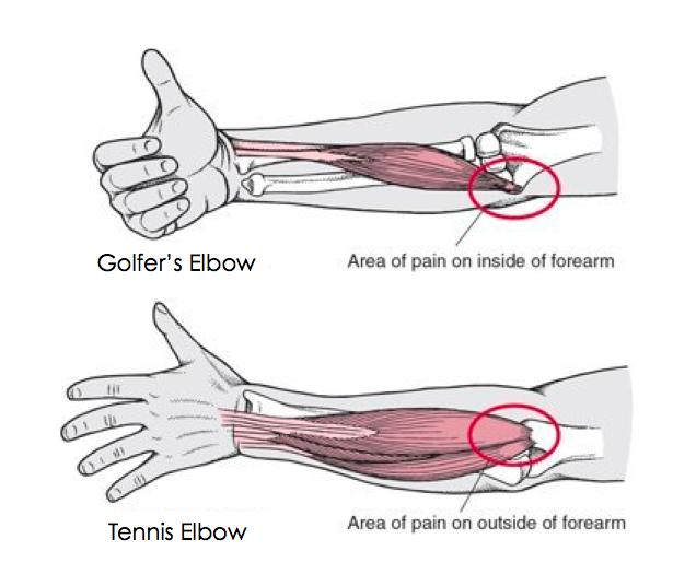 Golfer's Elbow - Medial Epicondylitis.jpg