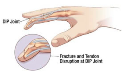Mallet Injury of the Index finger with loss of extension