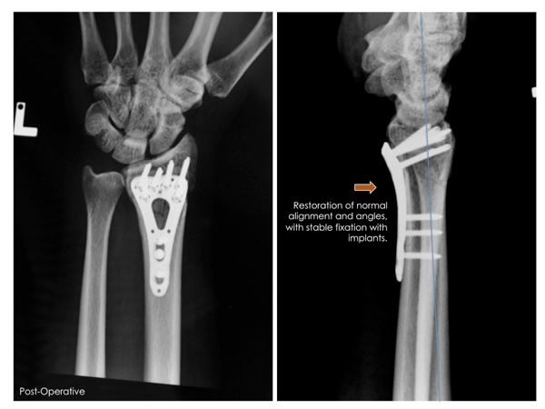 Figure 2: Distal Radius Fracture after restoration of normal alignment, correction of deformity, and internal fixation with locking titanium implants.