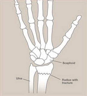 Figure 1 showing the two forearm bones - Radius and Ulna