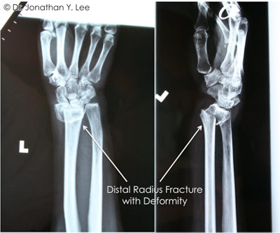 Figure 3 showing distal radius fracture with deformity