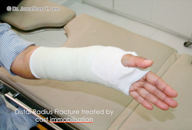 Figure 4 Distal Radius Fracture treated by cast immobilisation