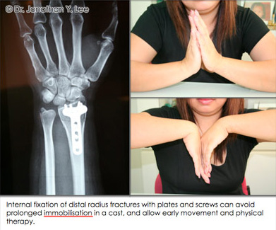 Figure 6 Internal fixation of distal radius fracture with plates and screws can avoid prolonged immobilisation in a cast, and allow early movement and physical therapy