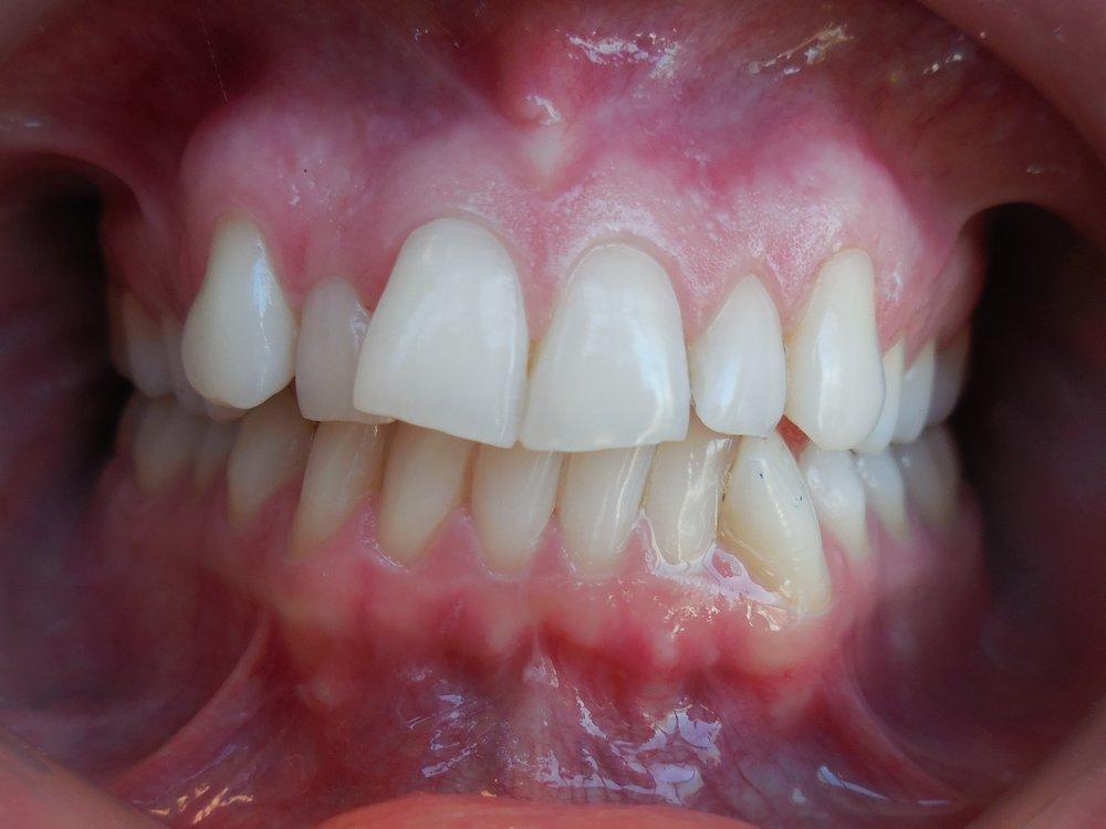 DSCN0123 (2) kylie teeth before.jpg