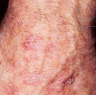 Actinic Keratosis - Actinic keratoses are precancerous growths that, if untreated, may progress to squamous cell carcinoma. Actinic keratoses are typically pink to red, flat, and rough or scaly on the surface. The presence of actinic keratoses shows that there is sun damage to the skin and indicates an increased risk for melanoma and non-melanoma skin cancers. Treatment of actinic keratoses may be performed easily at home with a prescription cream or in Dr. Gilman's office with a short, simple procedure.
