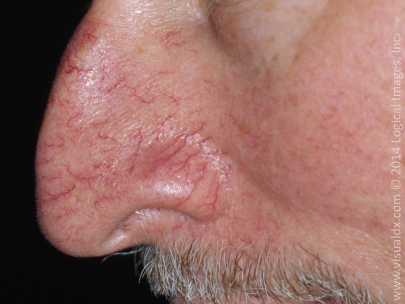 """Broken Blood Vessels - Over time, visible blood vessels  may appear on the skin, particularly around the nose, cheeks, and chin. Sun exposure and smoking increases the likelihood and the number of these lesions, and people with rosacea have many more of these visible vessels. The best treatment for these """"broken blood vessels"""" is with laser. Laser treatment removes these vessels in 1-3 treatments, depending on the number and severity. However, the laser treatment does not stop the causes of these visible vessels (aging, sun, smoking, etc). Over time your body will continue to develop new ones, eventually requiring additional laser treatments."""