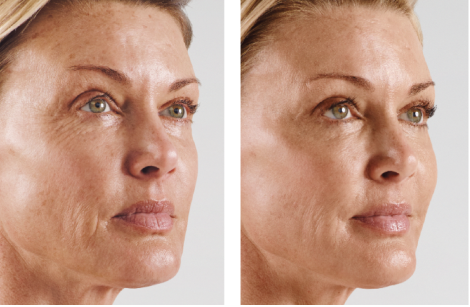 """Fillers - As we age, there is a gradual loss of volume in the face as the fat pads shrink. The skin appears thinner, it seems to sag, and lines and hollows appear. """"Dermal fillers"""" is a term that includes products which restore the areas of lost volume in order to regain a more youthful fullness. Many people are wary of treatment with fillers, as we see so many """"overdone"""" faces. My goal is to restore what you've lost in a very natural way, so that you always look like you, never overdone.The treatment takes from 20-30 minutes, plus additional time for application of a numbing cream. There may be some minor discomfort but treatment is not painful. Risks of treatment include swelling and bruising, which may be covered with makeup but can take several days to go away. Results last anywhere from months to years, depending on the products used and the area treated.Fillers are helpful to:- Restore facial fullness- Soften facial hollows and creases- Improve undereye hollows- Plump thin lips- Soften prominent tendons and veins on the backs of hands- Non-surgical """"liquid facelift"""""""
