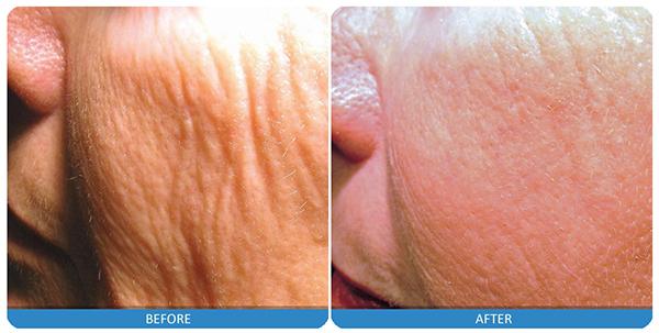 1-last-skin-resurfacing.jpg