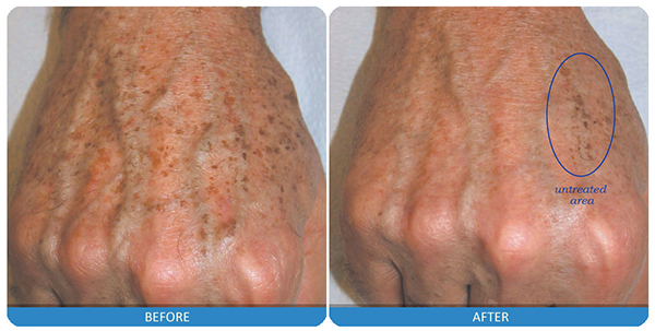 4-laser-skin-rejuvenation.jpg