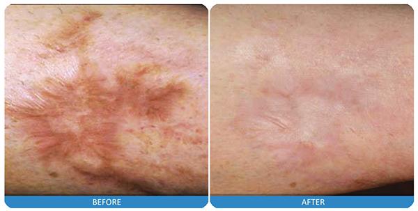 17-Laser-scar-treatment.jpg