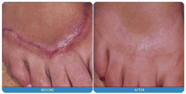 20-laser-scar-treatment.jpg