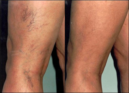 Before & After Spider Veins Treatment