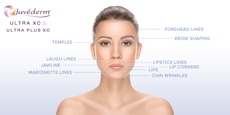Juvederm - Get the results you want with the help of the world's #1 selling collection of dermal fillers…