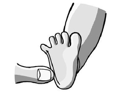 When the Babinski reflex is stimulated in the manner shown above, the toes will splay, the foot will jerk, or the person will feel discomfort or ticklish if it is still active.