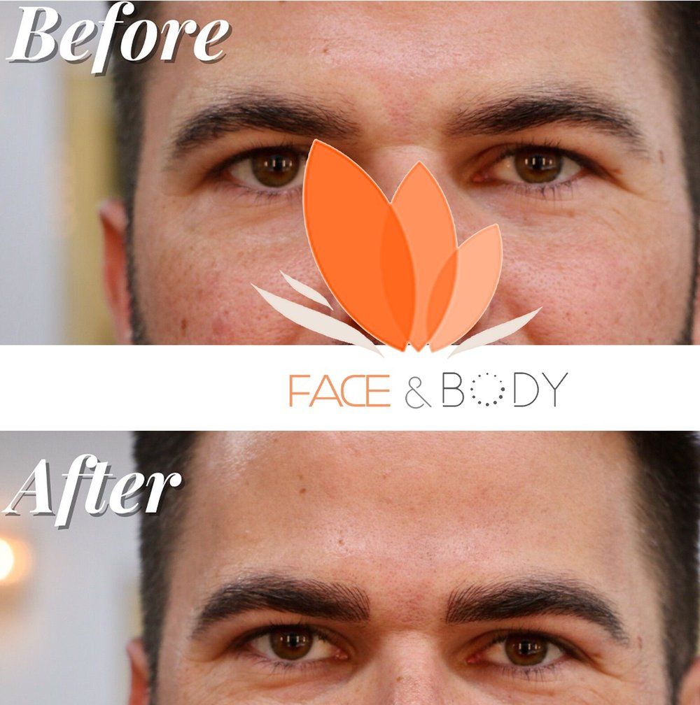 FACE%2BAND%2BBODY%2BMAN%2BMICROBLADING.jpg