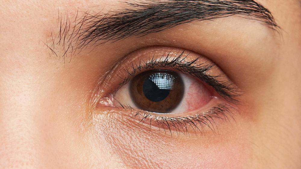 Eye Issues -