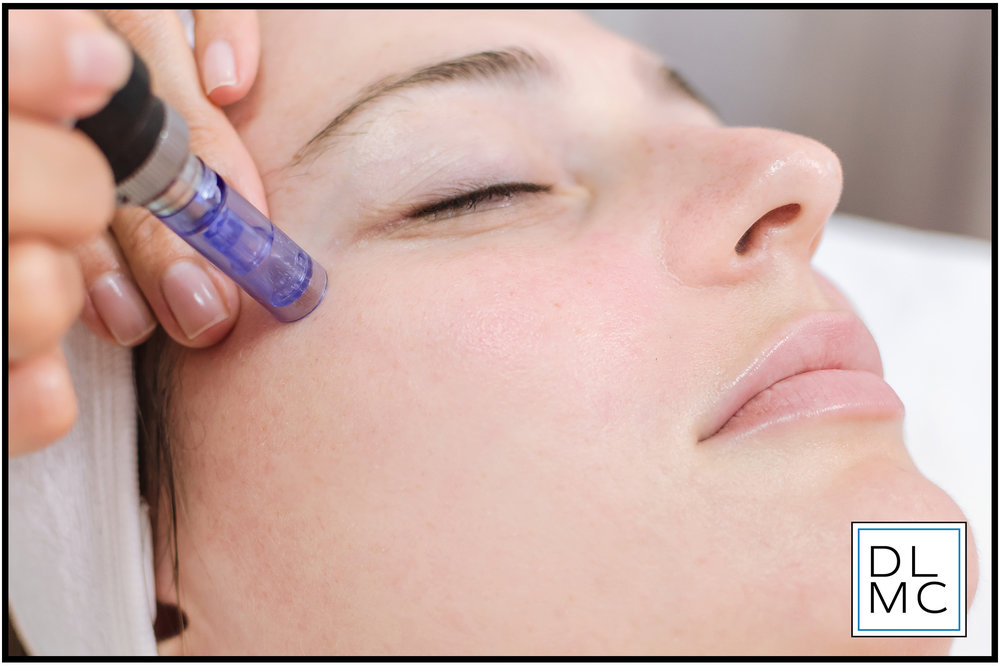 PRP + MICRONEEDLING - PRP (Platelet-rich Plasma) + Microneedling is a remarkable breakthrough in modern, aesthetic treatments. Our physician will first take a sample of your blood and spin it in a centrifuge to separate the growth factors (PRP) and prepare it for your treatment. During microneedling a physician uses a small device with small needles or a derma roller to create micro wounds in the skin that penetrate down to the dermis layer to stimulate collagen production. Following microneedling our physician will use the PRP as a serum and generously apply it to your face to promote natural healing. Patients have seen vast improvement in the appearance of aging and acne scars after just a few treatments.