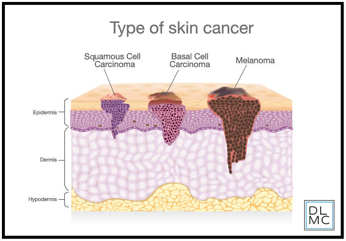 type of skin cancer.png