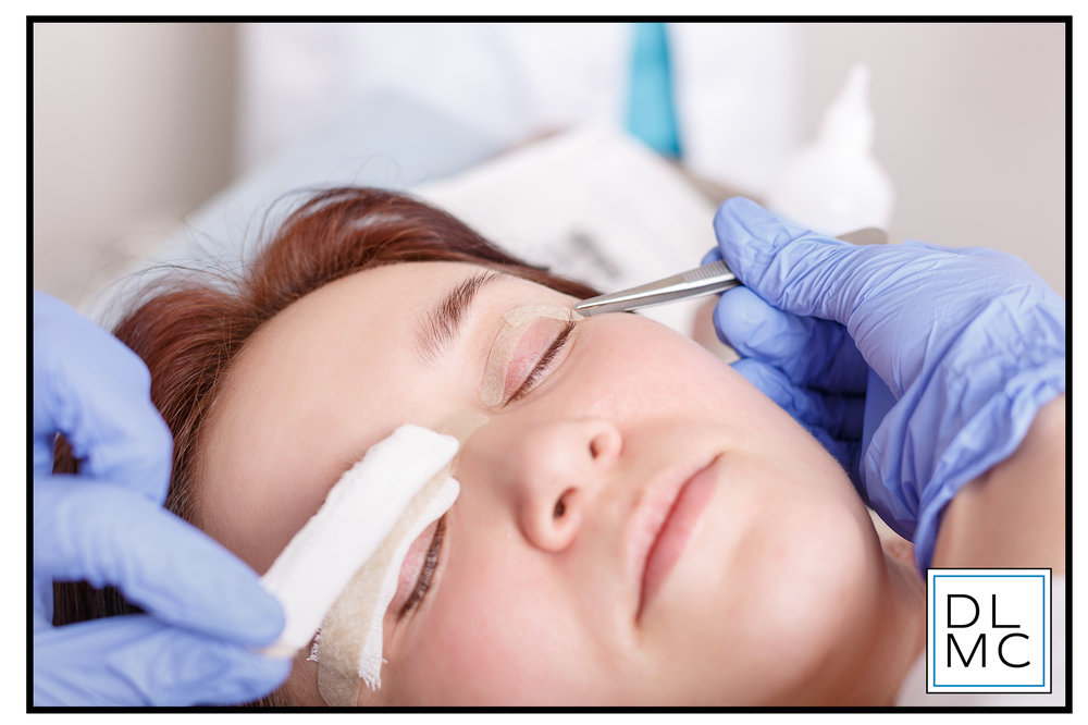 Upper & Lower blepharoplasty - As we age, our your upper and sometimes lower eyelids may become droopy or baggy. Blepharoplasty can remove excess skin, muscle and sometimes fat from the upper or lower eyelids. Upper Blepharoplasty is a surgery to remove and tighten excess eyelid skin for a more alert, youthful appearance.  In some cases, this procedure can even improve vision.
