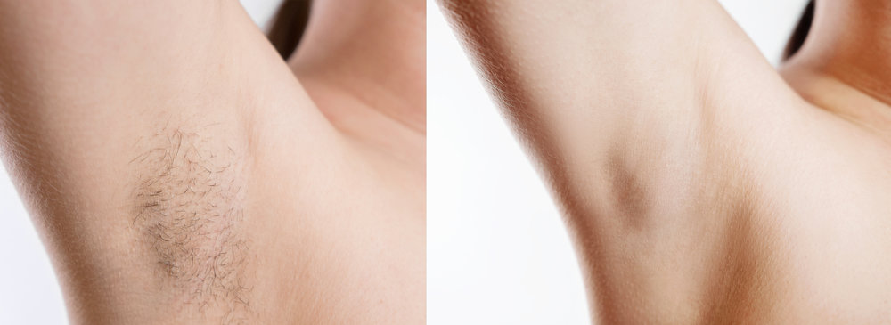 under-arm-hair-removal-sydney