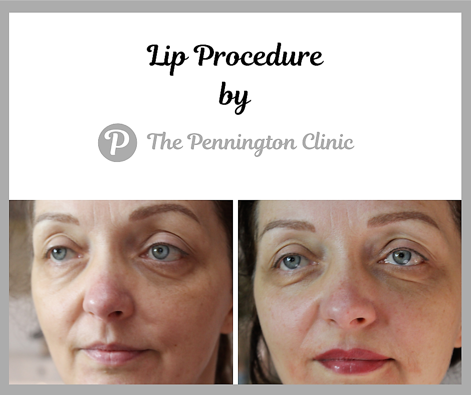 Lip Procedure by The Pennington Clinic.png