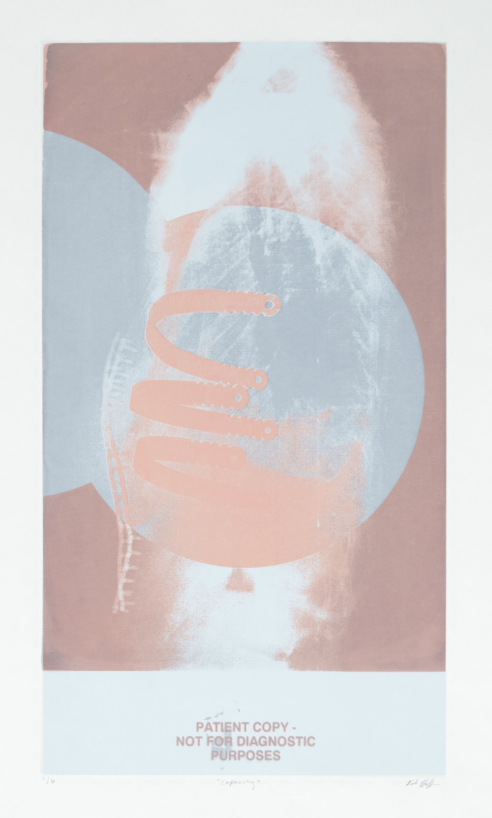 screenprint- x-ray redo 4.jpg