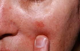 Actinic Keratosis, what is Actinic Keratosis, Actinic Keratosis treatment, actinic keratosis tampa, tampa dermatologist, dermatology specialist, dermatology consultant, dermatologist in tampa