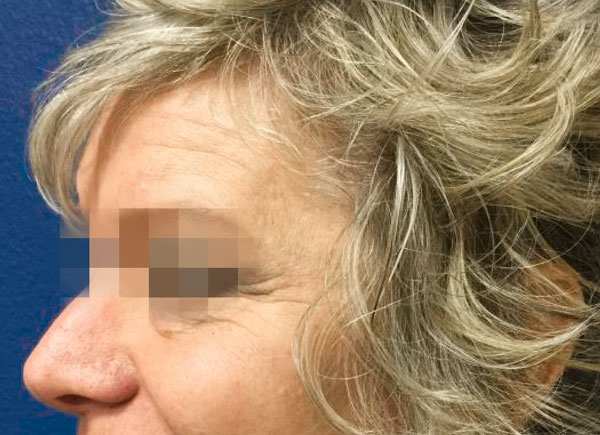 Before Botox and Volbella By   Michelle Brown