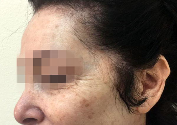 Before NuDerm and Botox By   Michelle Brown